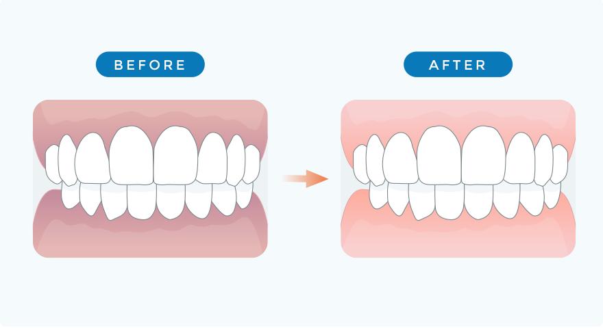 歯ぐきの色素除去