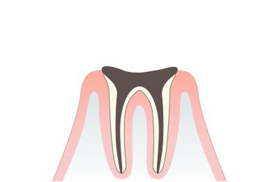 歯根に進行したむし歯