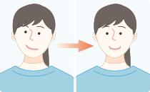 顎骨の成長発育障害の予防
