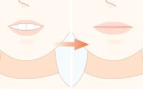 口唇閉鎖不全の改善