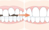 一般歯科治療を行うために必要な歯牙移動