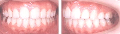 〈出っ歯の矯正治療(抜歯)〉 治療後