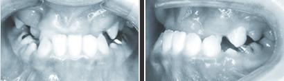 〈受け口の矯正治療(抜歯)〉 治療前