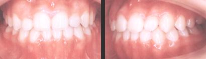 〈受け口の矯正治療(抜歯)〉 治療後