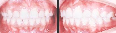 〈開咬の矯正治療(非抜歯)〉 治療後