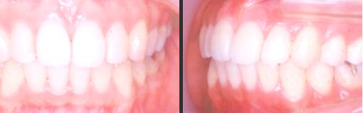 medical-orthodonic09-img01-2