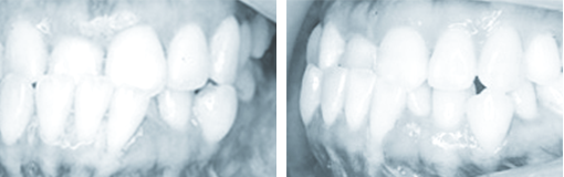 medical-orthodonic09-img03-1