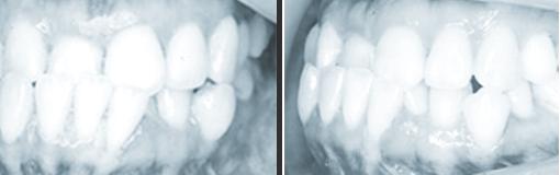 medical-orthodonic09-img03-1