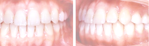 medical-orthodonic09-img05-2