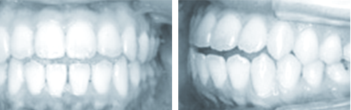 medical-orthodonic09-img06-1