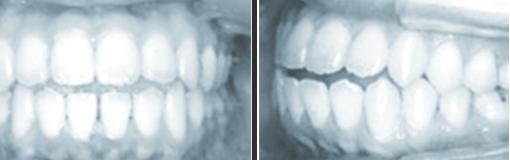 medical-orthodonic09-img06-1