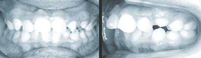 medical-orthodonic10-img01-1