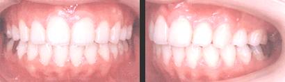 medical-orthodonic10-img02-2